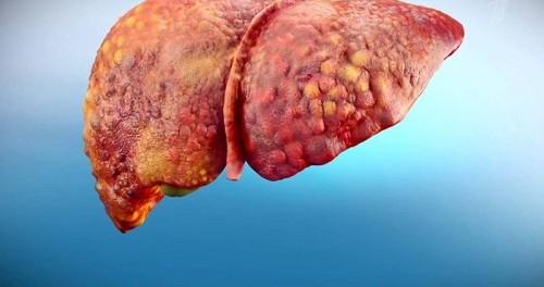 Цирроз печени - первые симптомы и как лечить