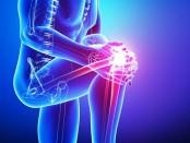 Заболевания суставов - какой выбрать санаторий в Украине для курса лечения