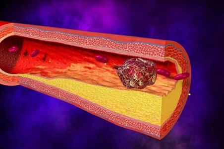 Первые признаки образования тромбов, которые можно обнаружить самостоятельно
